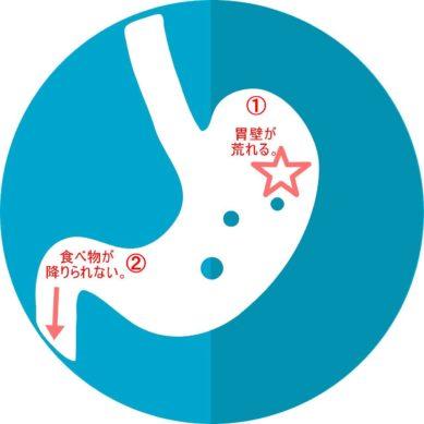 胃もたれの2パターン